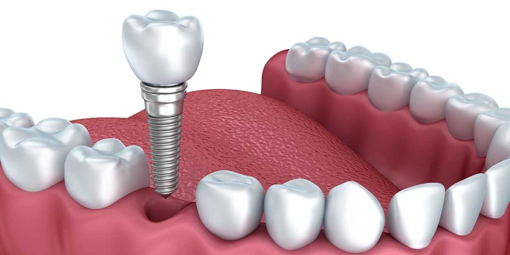 Особенности временного протезирования на имплантах